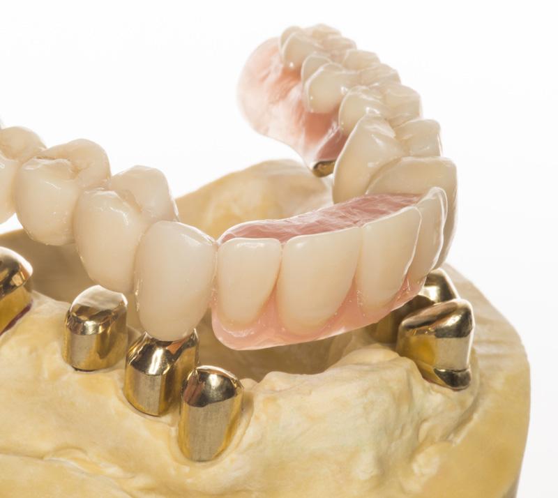 Zahnersatz ohne gaumenplatte herausnehmbarer Zahnersatz Vorteile