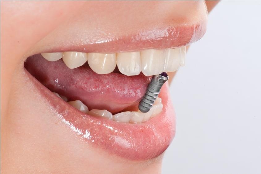 Zahnverlust: Das können Sie tun