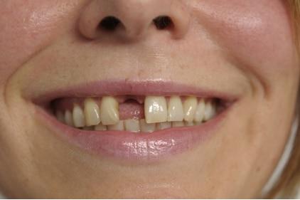 Bei Zahnverlust: Zahnersatz mit Implantaten - kein Abschleifen gesunder Nachbarzähne