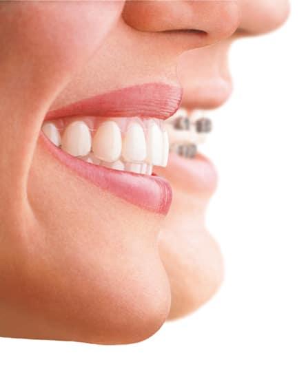Invisalign: die Alternative für schöne Zähne