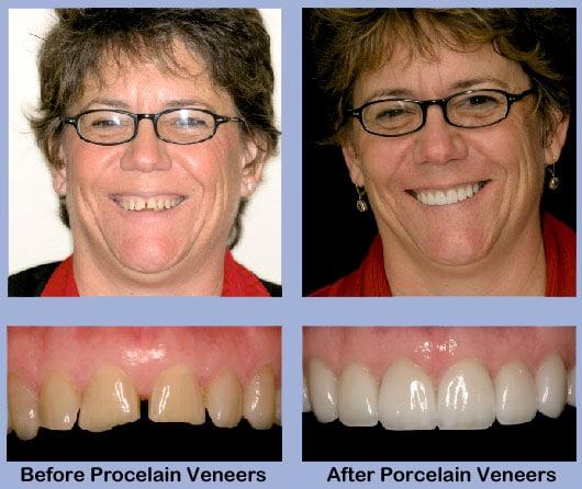 Veneers: so sehen die Zähne vorher und nachher aus