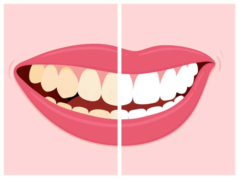 Schöne und weiße Zähne nach professioneller Zahnreinigung und Bleaching