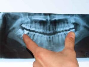 CMD-Befund: Röntgenbild