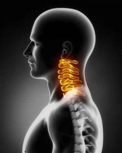 CMD: Der Schmerz strahl in die Nackenwirbel aus