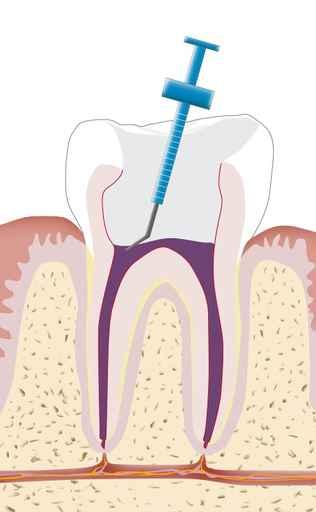 Den Abschluss der Wurzelbehandlung bildet der Verschluss des Zahns