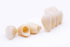 Fehlstellungen des Kiefergelenks: Zahnersatz zur Korrektur des Bisses