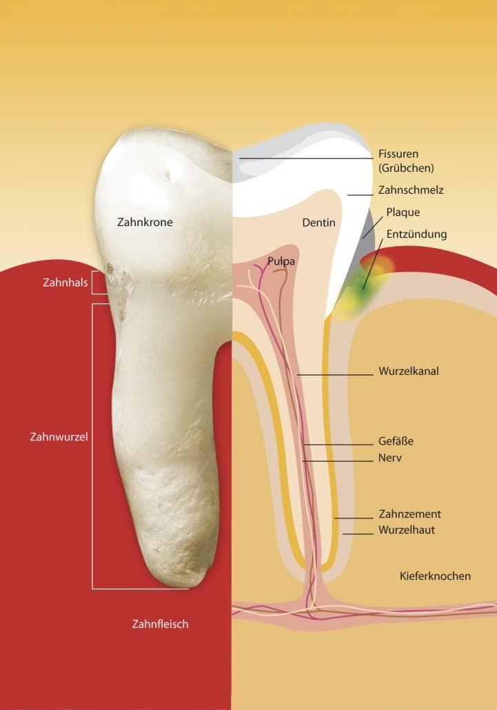 Ihr Zahnarzt in Köln, das Blog, die Wurzelkanalbehandlung