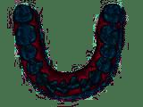 Engstand - Zahnfehlstellungen korrigieren mit Invisalign