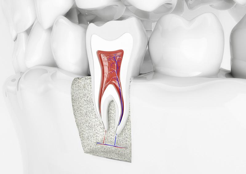 Wurzelspitzenresektion bei ihrem Zahnarzt in Köln - topDentis Cologne